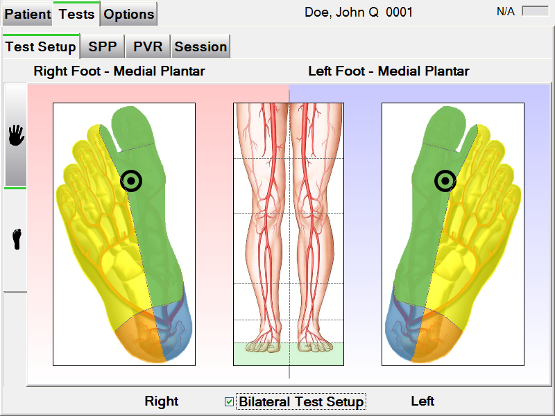 PAD-IQ Bilateral Test on sole of Foot